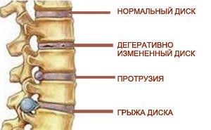 Лечение-грыжи-поясничного-отдела-позвоночника.jpg